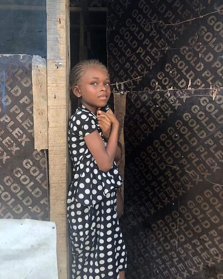 Nigeria Girl with Caramel Hair And Eyes Found on the Street Becomes Model